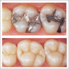 Tratamentul cariei dentare